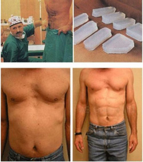 Six pack ab surgery instant six pack
